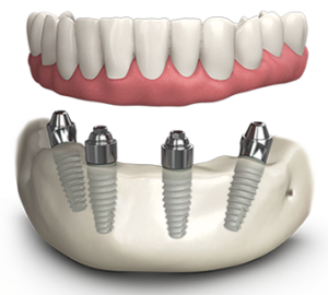what is dental implants