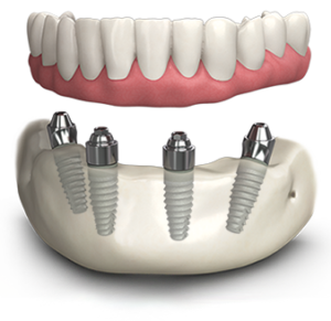 Dental Implants in Davie, Weston, Plantation FL
