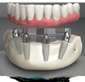 All on four teeth implants in pembroke penies fl
