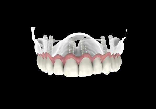 Best All ON 4 Dental Implants in Pembroke Pines FL