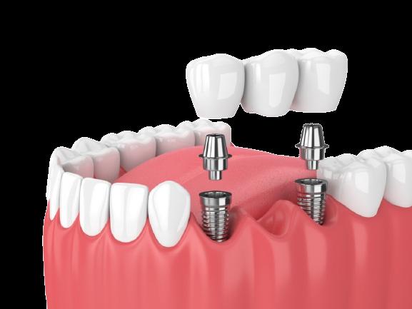 Best Dental Implants in Pembroke Pines FL
