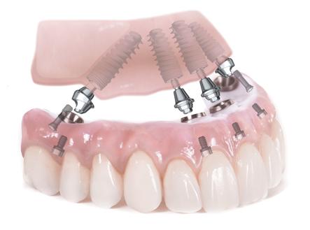 Full Mouth Dental Implants in Pembroke Pines FL